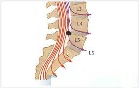 Đoạn đốt sống L4 – L5 sở hữu 1 dây thần kinh đi qua và dây thần kinh này được gọi là gì?